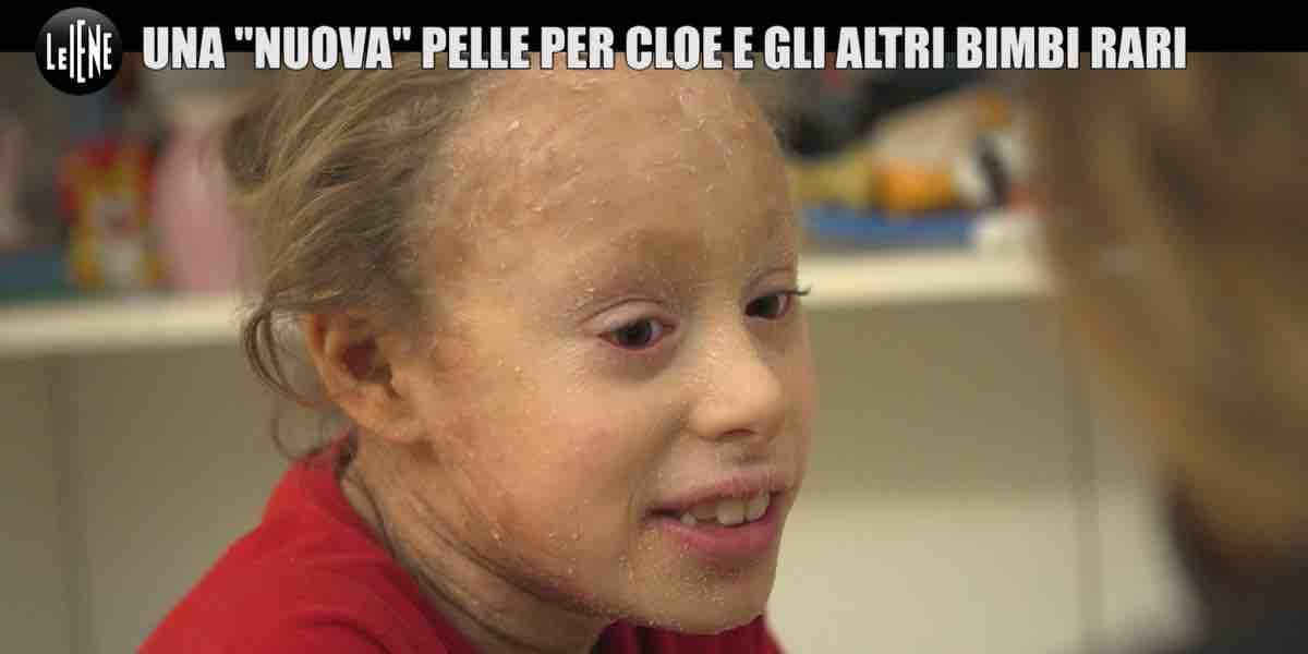 Le Iene, ittiosi malattia della pelle dei bambini arcobaleno | Video ...